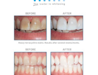 Opalesence Whitening Beforeafter Thehouseofmouth